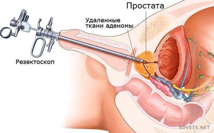 Лекарственные препараты для аденома простата