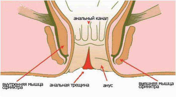 analnaya-treshina-ultrazvuk
