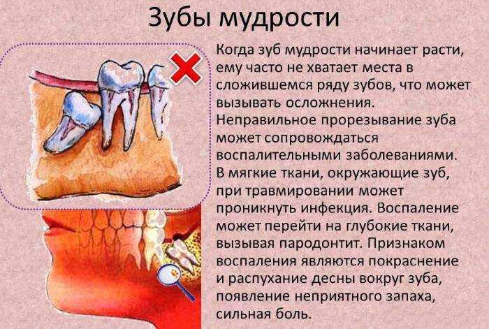 Если болит зуб холодная вода помогает 44