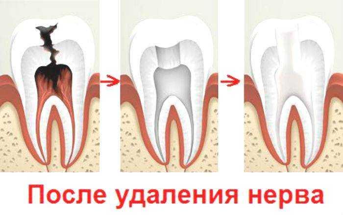Где у зуба находиться нерв