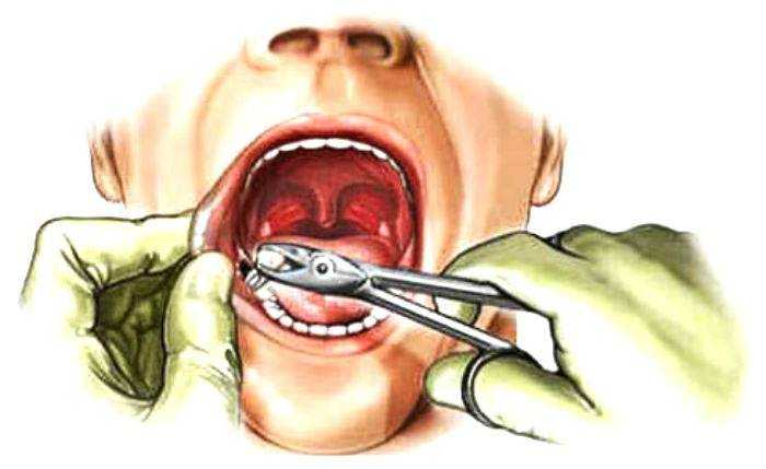 Через сколько полоскать рот после удаления зуба